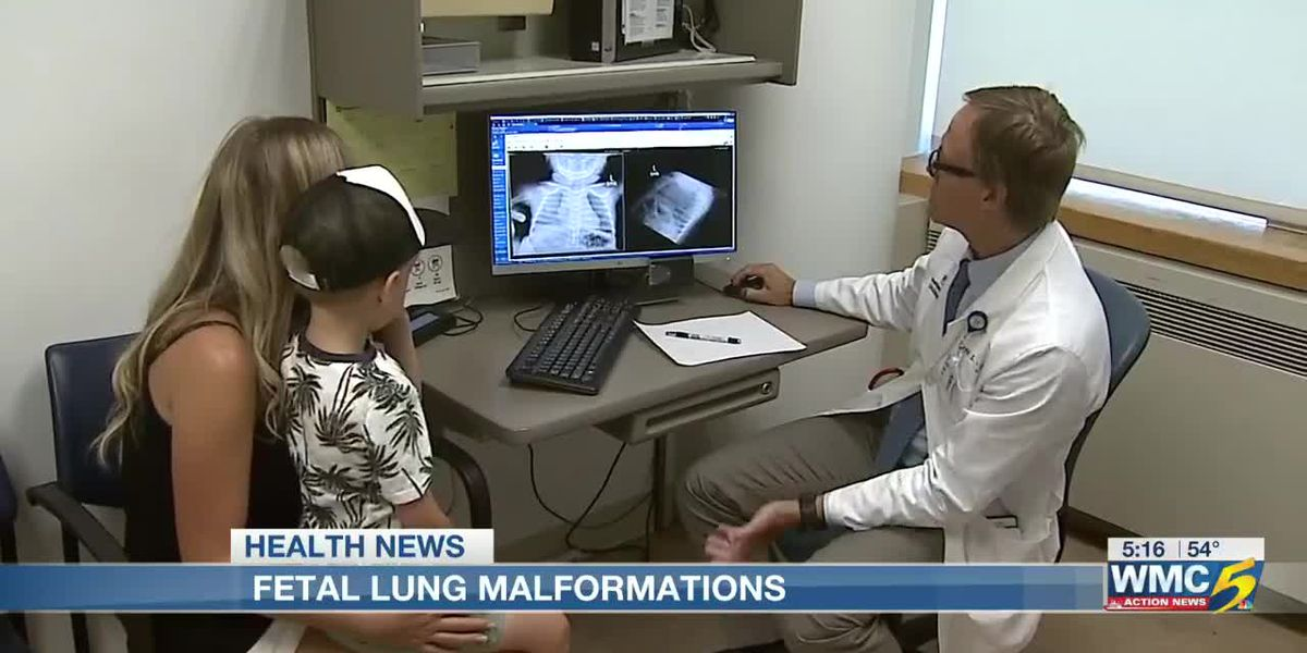 Best Life: Effective surgical procedures for fetal lung malformations