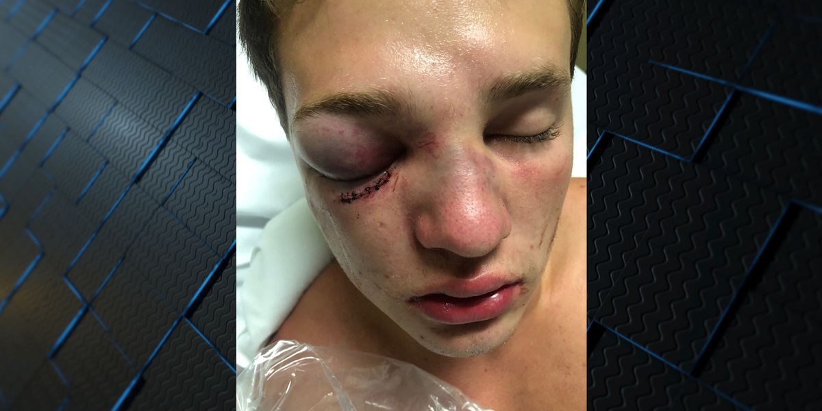Lawsuit: AL teens attacked on river, threatened with rape