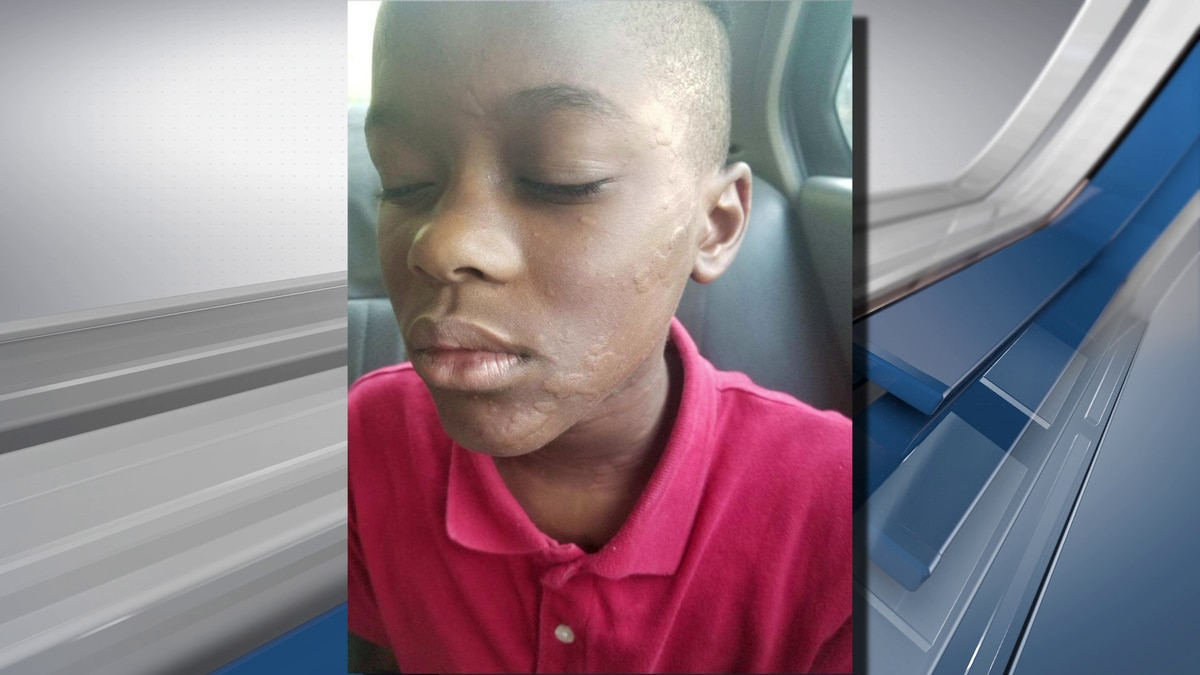 Germantown mother upset after her son was pepper-sprayed at school