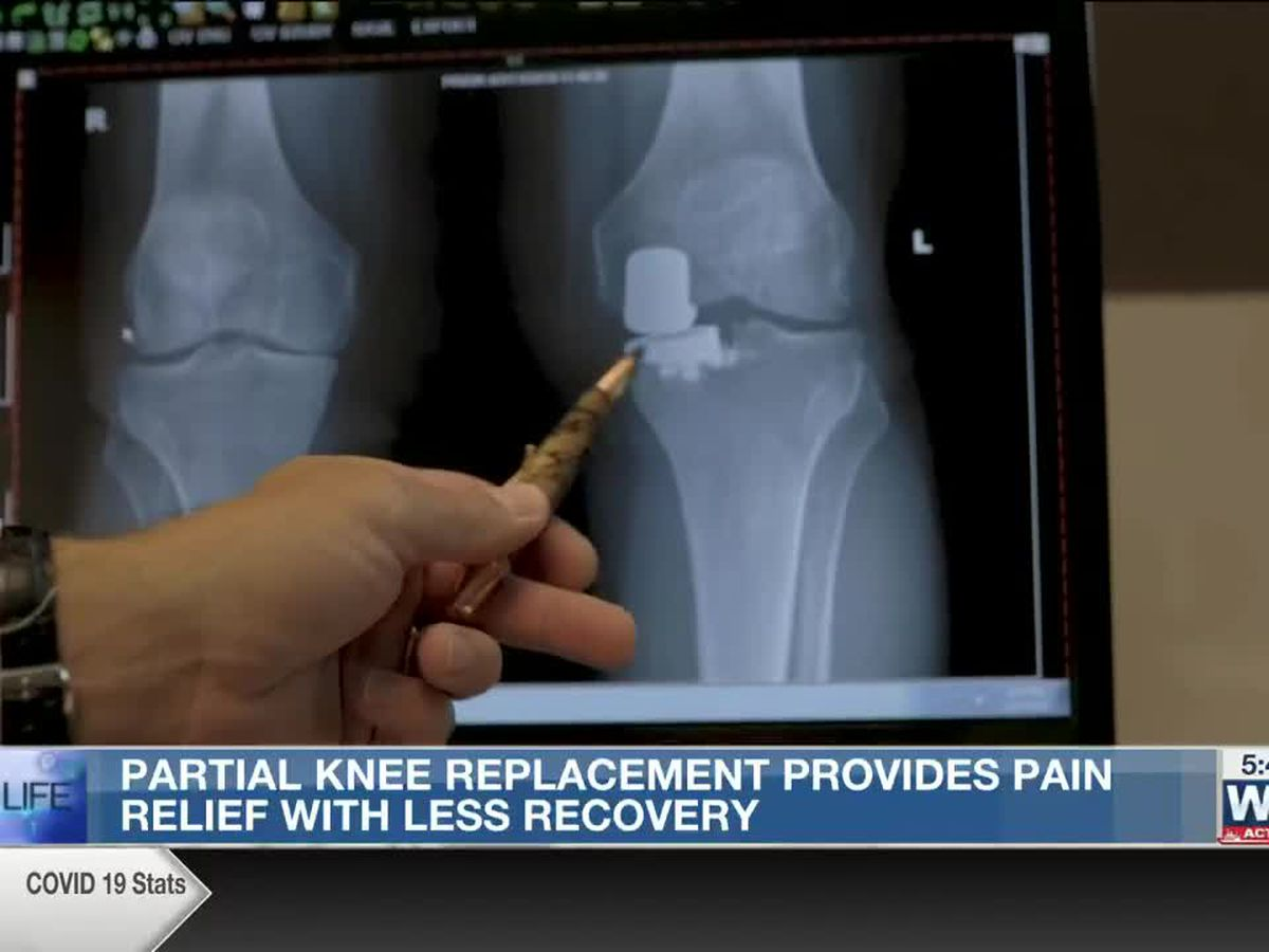 Best Life: Partial knee replacement provides pain relief with less recovery