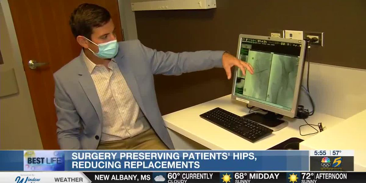 Best Life: Surgery preserving patients' hips, reducing replacements