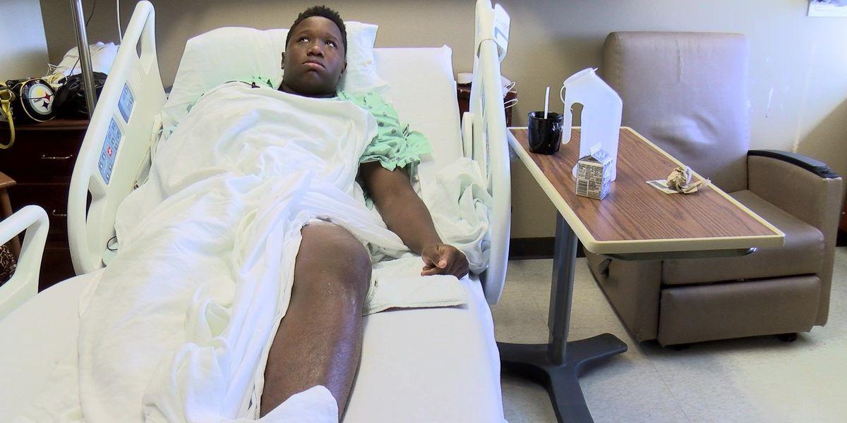 Teen shot in leg describes 'fake gun' held to his head