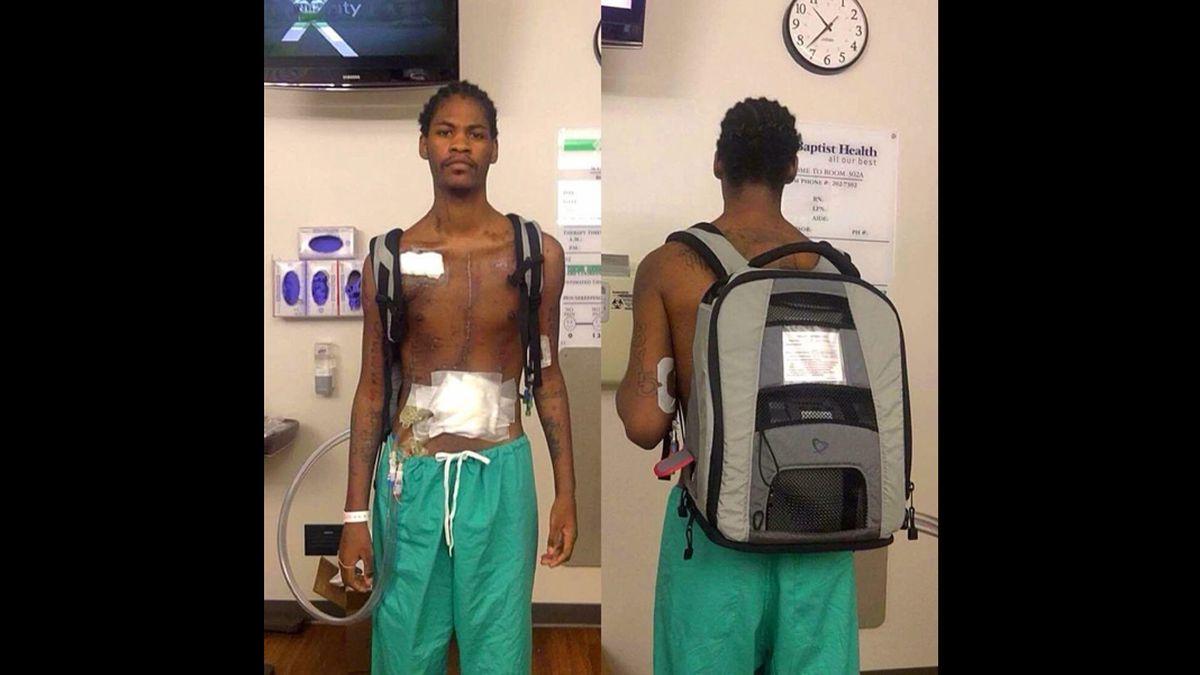 Arkansas man who had artificial heart receives donor heart