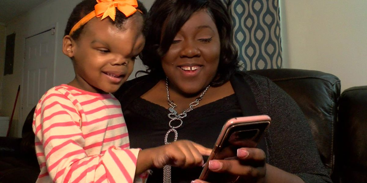 Surgery gives toddler born with severe birth defect a new beginning