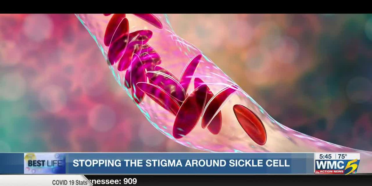 Best Life: Stopping the stigma around sickle cell