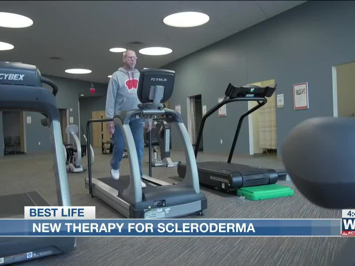 Best Life: New therapy for scleroderma