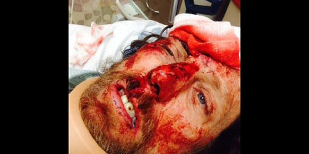 GRAPHIC: Man attacked, beaten with baseball bat while biking in Midtown Memphis